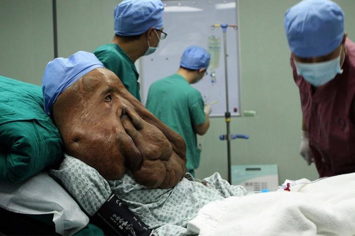 Гермафродиты фото органов людей
