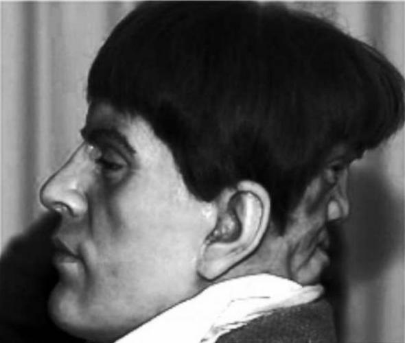 Двуликий человек Эдвард Мордрейк (4 фото)