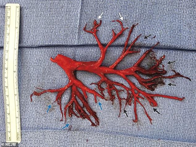 Медицинский кошмар: Пациент выкашлял часть бронхов (2 фото)