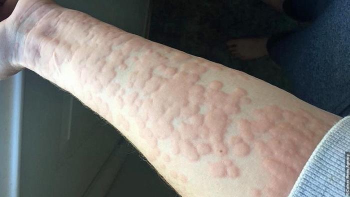 Жительница Канады страдает очень редкой аллергией на зиму (4 фото)