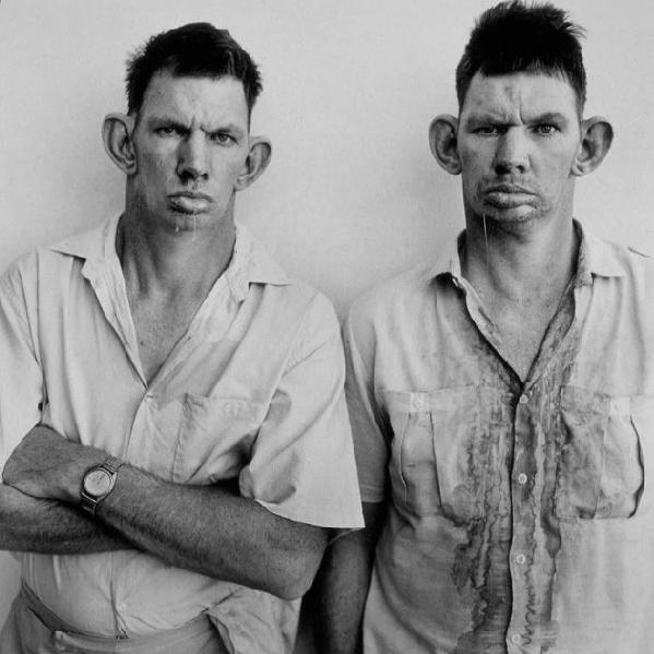 Пускающие слюни близнецы на знаменитой фотографии 1993 года: кто они и как сейчас выглядят (4 фото)