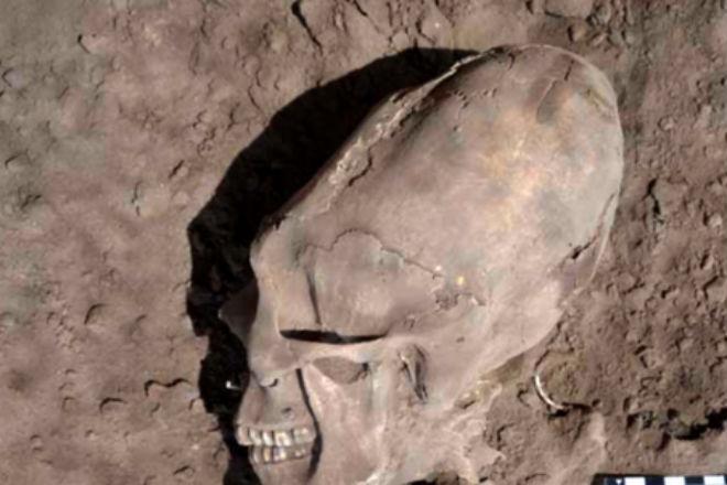 Археологи нашли тысячелетние останки людей с головами в форме яйца