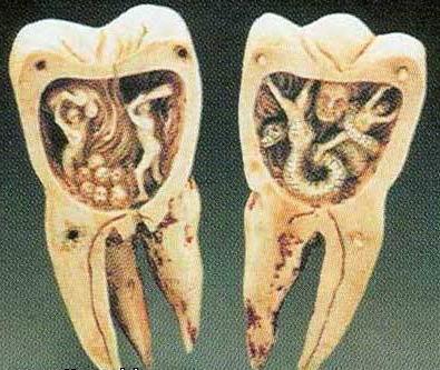 Сонник зубы крошатся и выпадают миллера